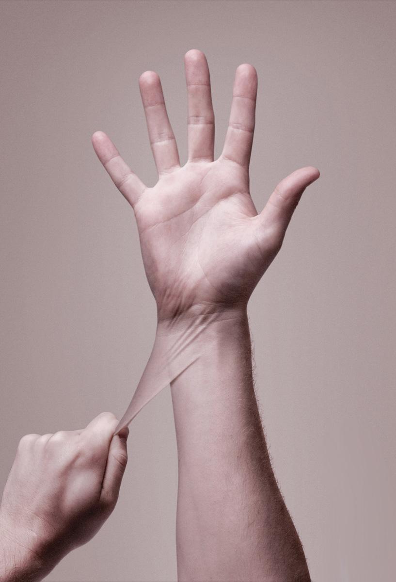 пищевая аллергия на руке